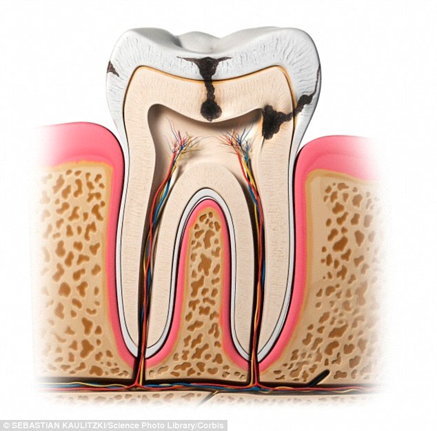 2EDCB89000000578-0-Dental_erosion_occurs_when_acid_dissolves_the_hard_tissues_of_th-a-17_1448655199182