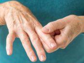 Tips-for-Living-with-Rheumatoid-Arthritis-01-1440x810